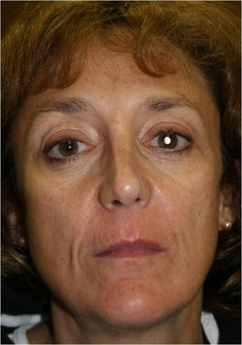 60 year old female 3 years after a Liquid Facelift using Sculpra injections before 983691
