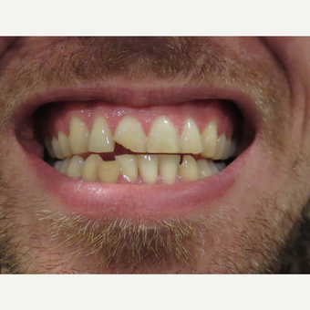 25-34 year old man treated with Dental Bonding before 3338717
