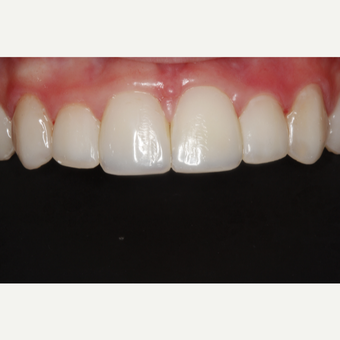 18-24 year old woman treated with Dental Bonding after 3305016