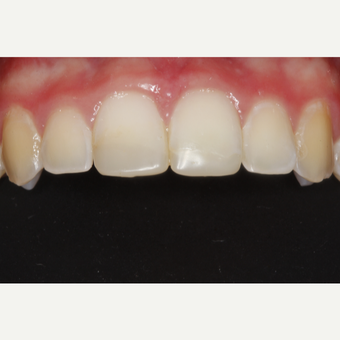 18-24 year old woman treated with Dental Bonding before 3305016