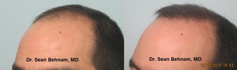 35-44 year old man treated with FUE Hair Transplant