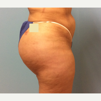 treated with Fat Transfer to the buttocks after 3741559