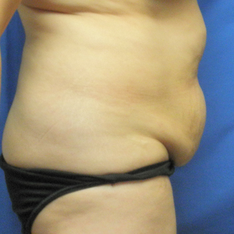 45-54 year old woman treated with Tummy Tuck before 3459216