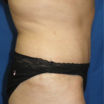 45-54 year old woman treated with Tummy Tuck after 3459216
