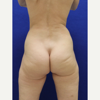 35-44 year old woman treated with Brazilian Butt Lift before 3482335