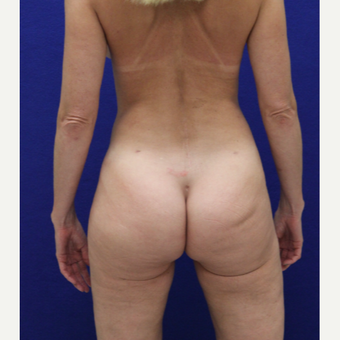 35-44 year old woman treated with Brazilian Butt Lift after 3482335