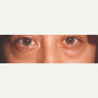 35-44 year old woman treated with Eye Bags Treatment before 3545048