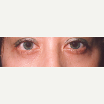 35-44 year old woman treated with Eye Bags Treatment after 3545048