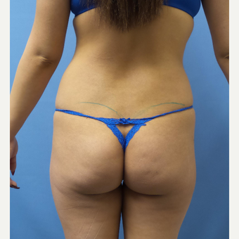 18-24 year old woman treated with Butt Implants before 3378481