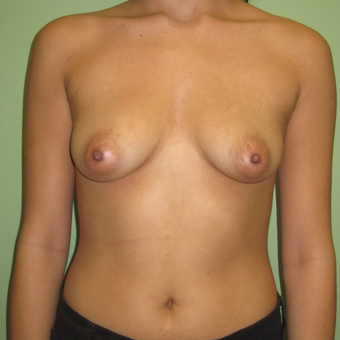 18-24 year old woman treated with Breast Augmentation before 3220527