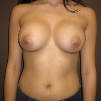 18-24 year old woman treated with Breast Augmentation after 3220527
