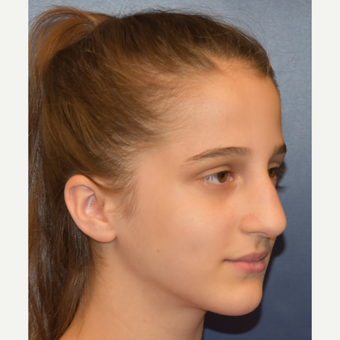 17 or under year old woman treated with Nose Surgery before 3306009