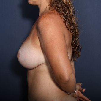 35-44 year old woman treated with Breast Lift with Implants (view 2 of 2) after 3406011