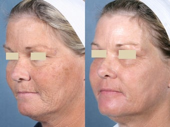 Laser Peel Treatments before 104660