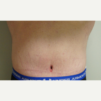 25-34 year old man treated with Body Lift after 3076259