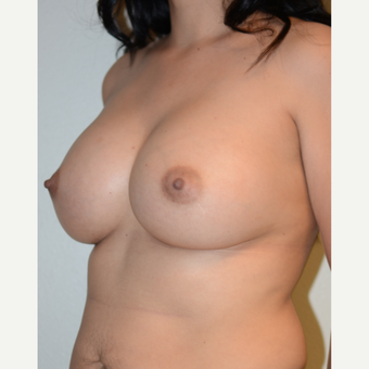 35-44 year old woman treated with Breast Augmentation after 3565953