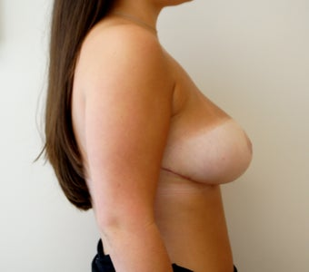 19 year old breast reduction 1329327