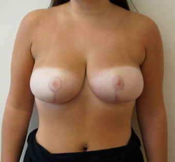 19 year old breast reduction after 1329327