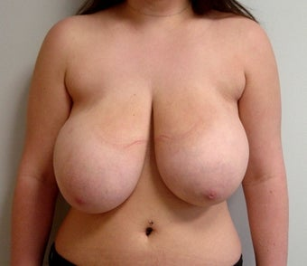 19 year old breast reduction before 1329327