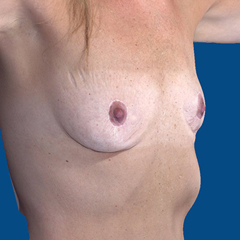 45-54 year old woman treated with Breast Augmentation before 3808702