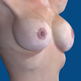45-54 year old woman treated with Breast Augmentation after 3808702
