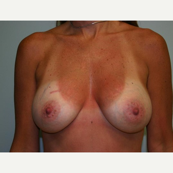 Breast Augmentation after 3560780