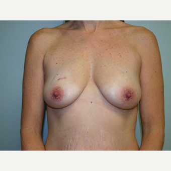 Breast Augmentation before 3560780
