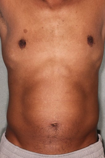 42 Year Male Treated to Increase Ab Definition  before 824829