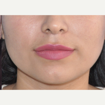 18-24 year old woman treated with Lip Augmentation after 3219587