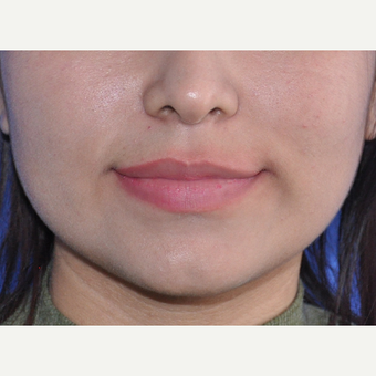 18-24 year old woman treated with Lip Augmentation before 3219587