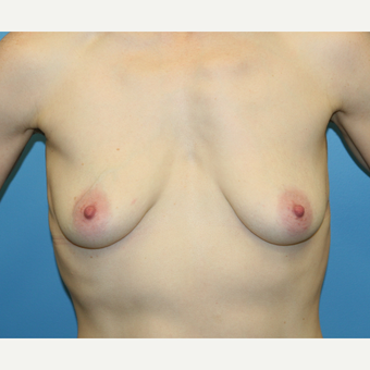 38 year old woman treated with Breast Augmentation before 3486921