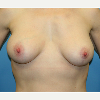 38 year old woman treated with Breast Augmentation after 3486921