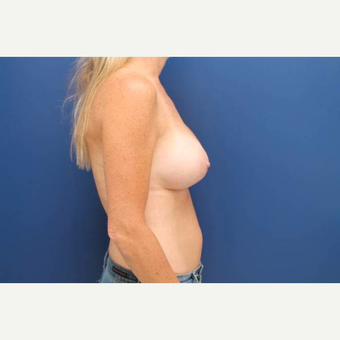 40 year old female, 375cc silicone gel high profile breast implants, submuscular after 3814609