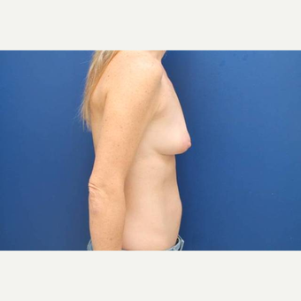 40 year old female, 375cc silicone gel high profile breast implants, submuscular before 3814609