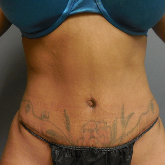25-34 year old woman treated with Tummy Tuck after 3076969