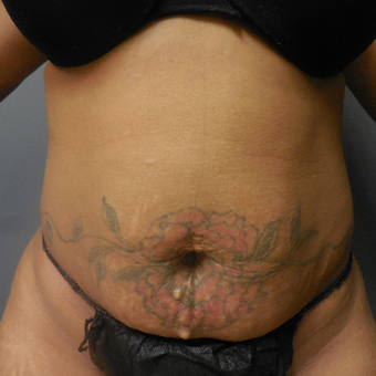 25-34 year old woman treated with Tummy Tuck before 3076969