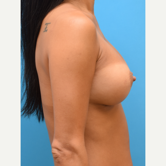 35-44 year old woman treated with Breast Implants after 3259166