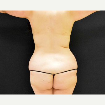 35-44 year old woman treated with Liposculpture before 3201398