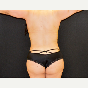 35-44 year old woman treated with Liposculpture after 3201398