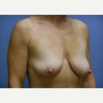 45-54 year old woman treated with Breast Lift with Implants 1958406