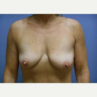 45-54 year old woman treated with Breast Lift with Implants before 1958406