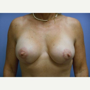 45-54 year old woman treated with Breast Lift with Implants after 1958406