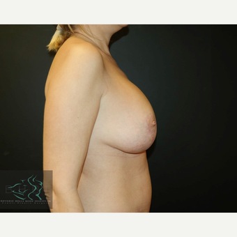 45-54 year old woman treated with Breast Lift with Implants after 3591204