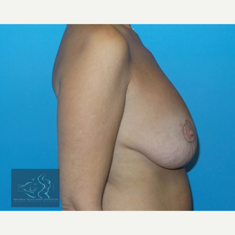 45-54 year old woman treated with Breast Lift with Implants before 3591204