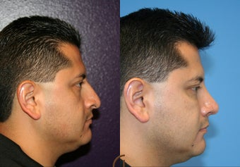 male rhinoplasty before 450431