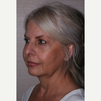 55-64 year old woman treated with Facelift before 3629346