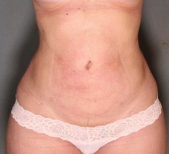 27 year old woman treated with Smart Lipo Liposuction to Abdomen, Flanks and Back.  Lost 5 Inches!