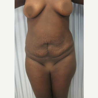25-34 year old woman treated with Tummy Tuck before 2728300