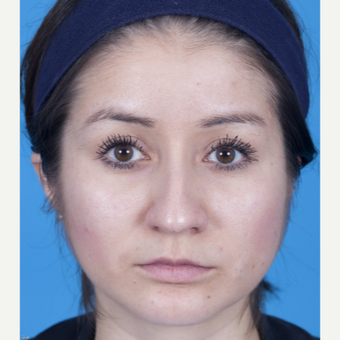 25-34 year old woman treated with Rhinoplasty before 3159509