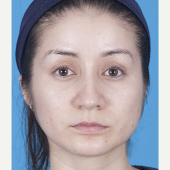 25-34 year old woman treated with Rhinoplasty after 3159509